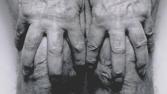 John Coplans - Self-Portrait, Hands Spread on Knees (detail), 1985, photo via tate